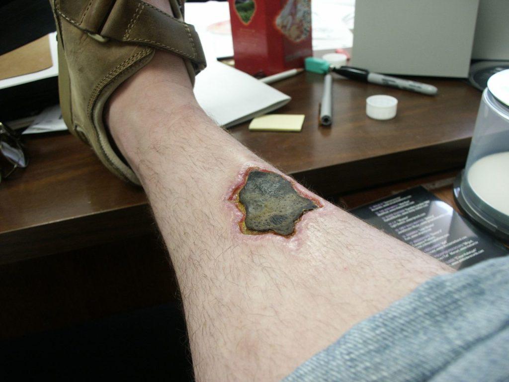 Нога человека через 2 месяца после укуса коричневого паука отшельника