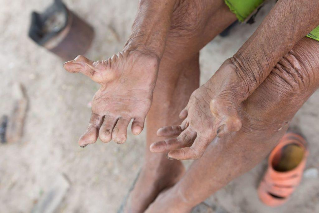 Осложнения полиомиелита