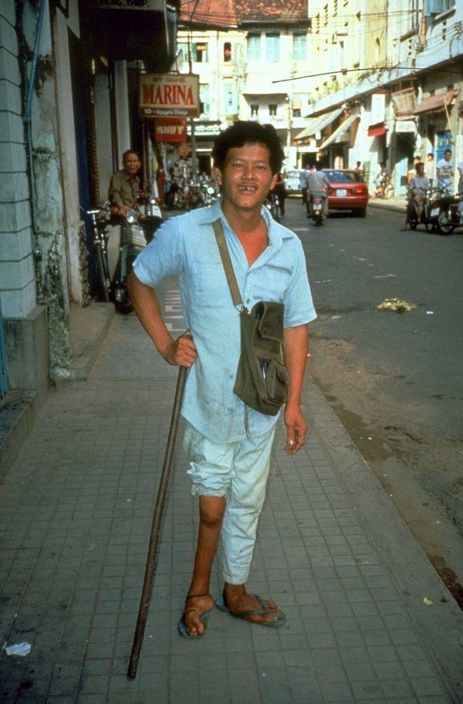 Атрофированная нога от полиомиелита