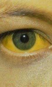 Желтая лихорадка как острое вирусное заболевание