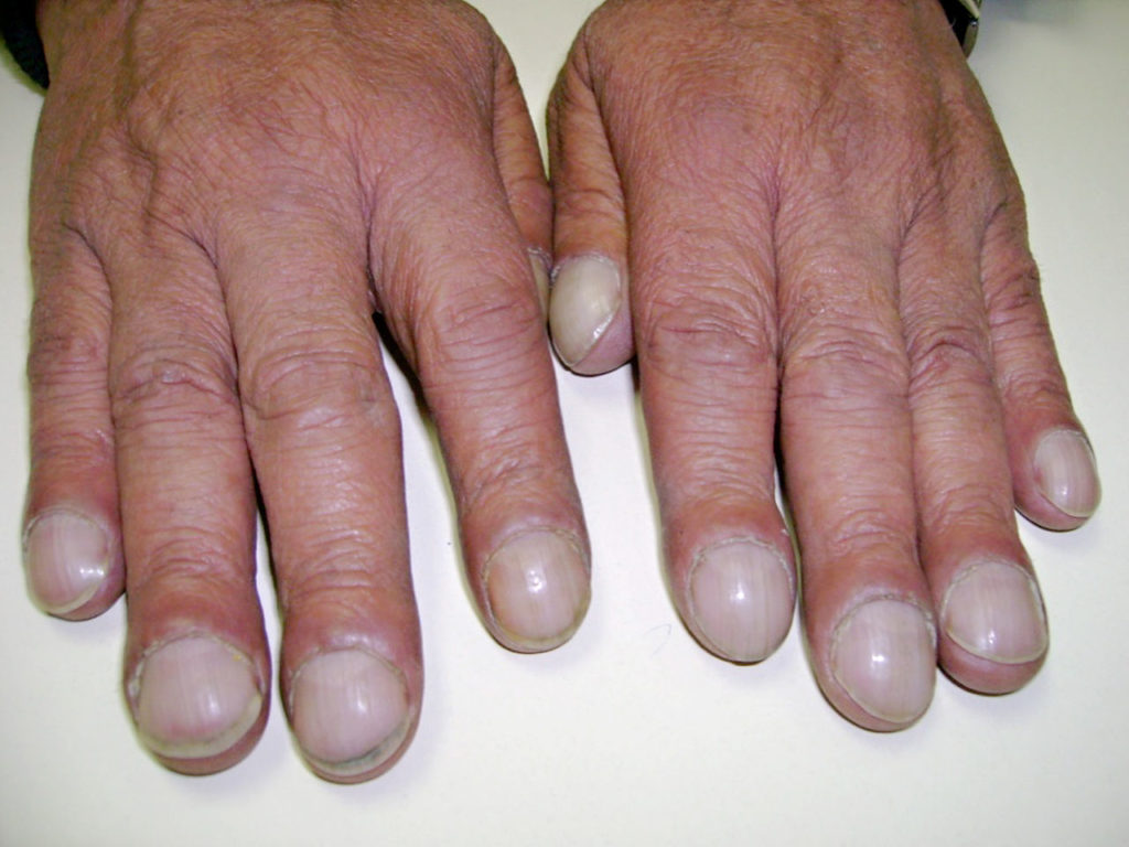 Деформация пальцев при туберкулезе