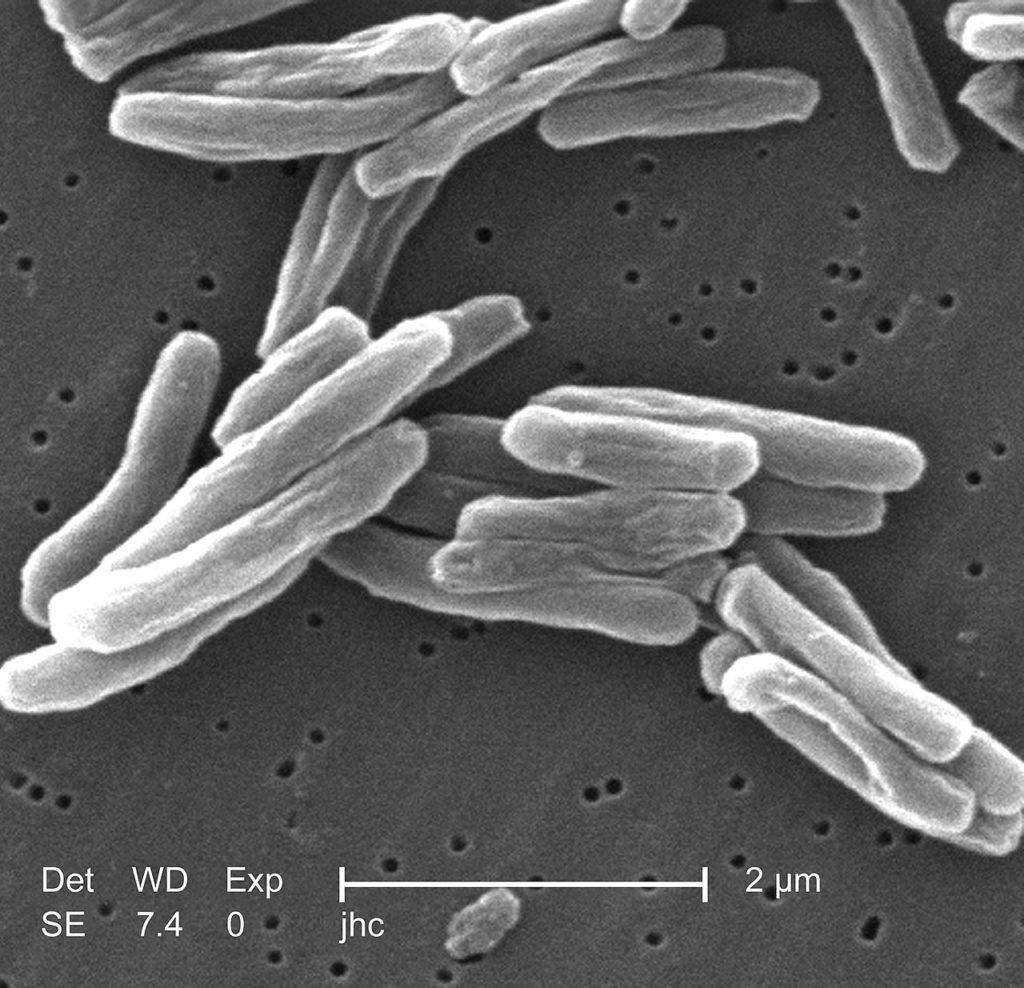 Туберкулез под микроскопом