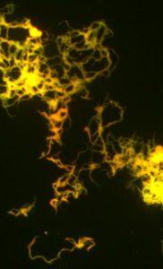 Туберкулез или Чахотка как самая смертельная инфекционная болезнь