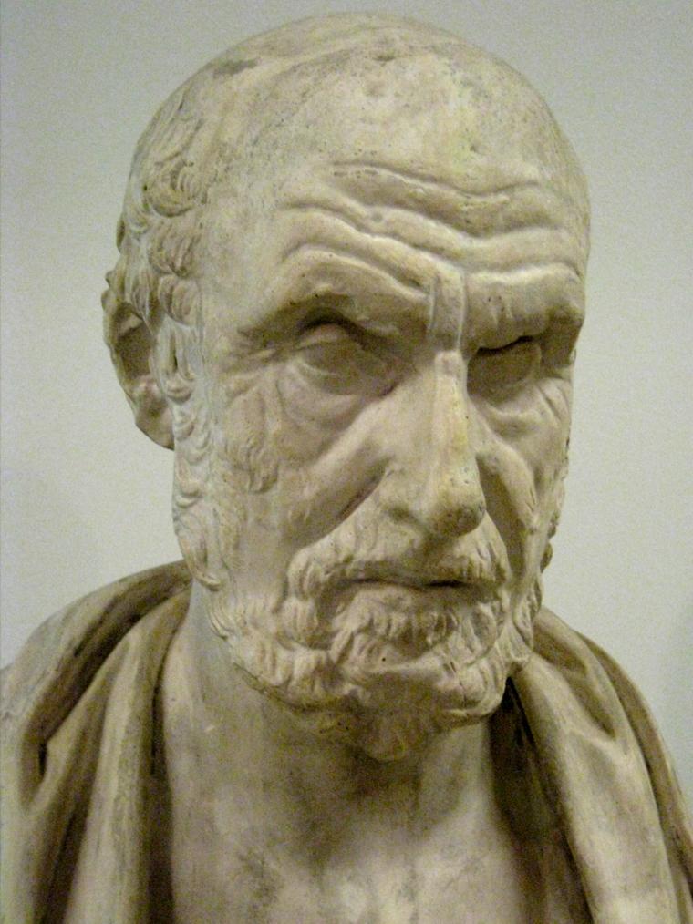 Скульптура Гиппократа – человек обнаруживший дифтерию